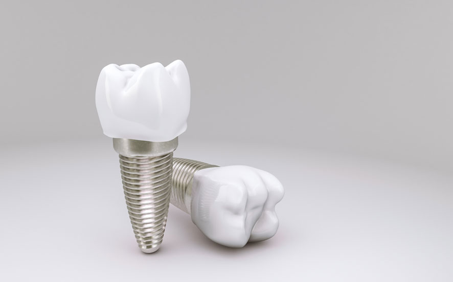 Zahnarztpraxis Barbutova Leistungen Implantologie