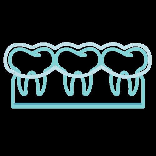 Zahnarztpraxis Barbutova Leistungen Zahnschienen